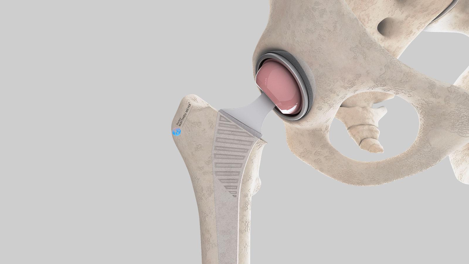 Prothèse totale de hanche en place
