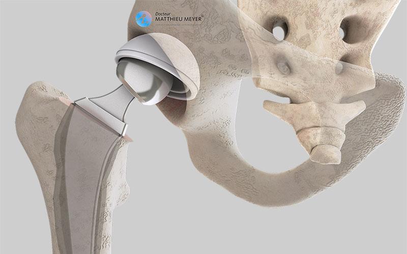 Descellement de prothèse de hanche et en-dessous : bascule de l'implant cotyloïdien et résorption osseuse au contact de la tige fémorale