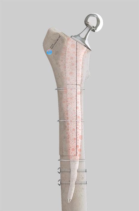 Prothèse de reconstruction avec ostéotomie fémorale