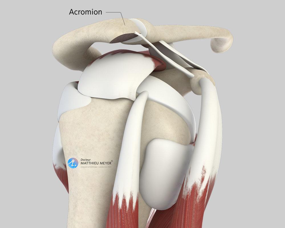 Acromion après acromioplastie (vue latérale)
