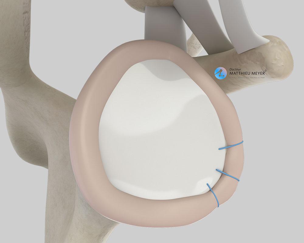Aspect final de la réinsertion du labrum (vue latérale)