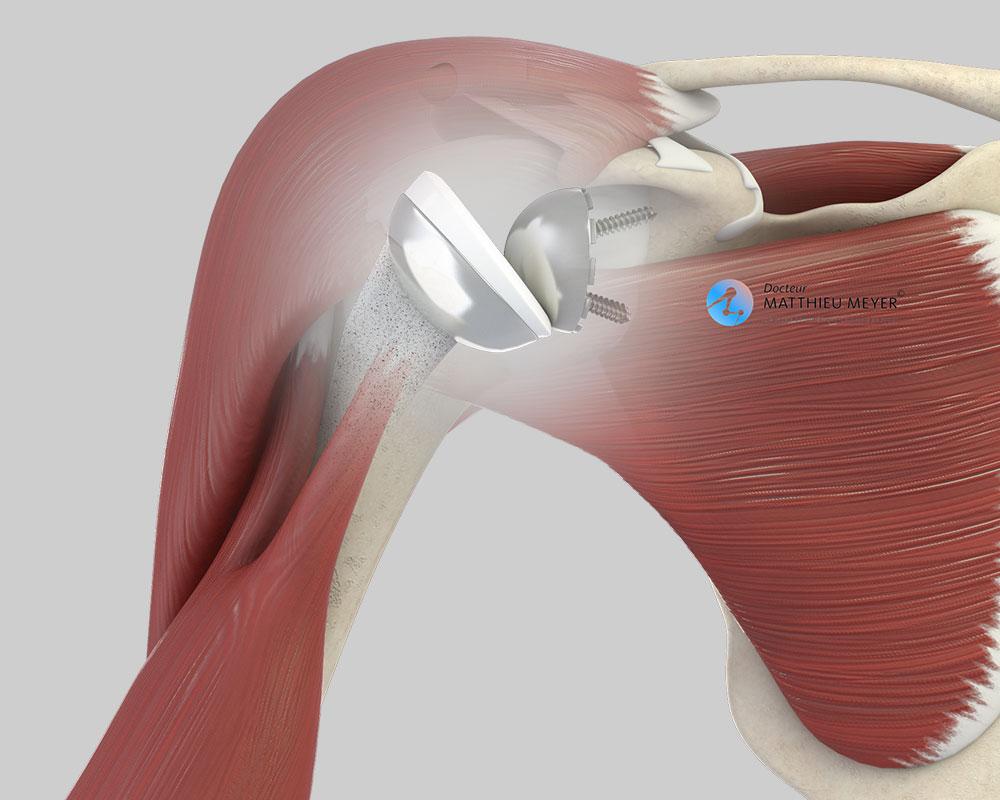 Prothèse totale d'épaule inversée