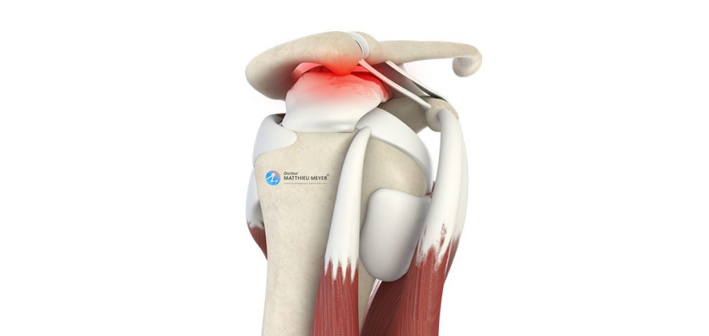 Acromioplastie de l'épaule