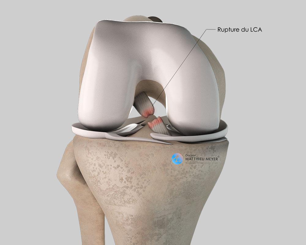 Rupture du ligament croisé antérieur