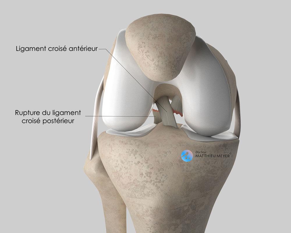Rupture du ligament croisé postérieur (vue antérieure)