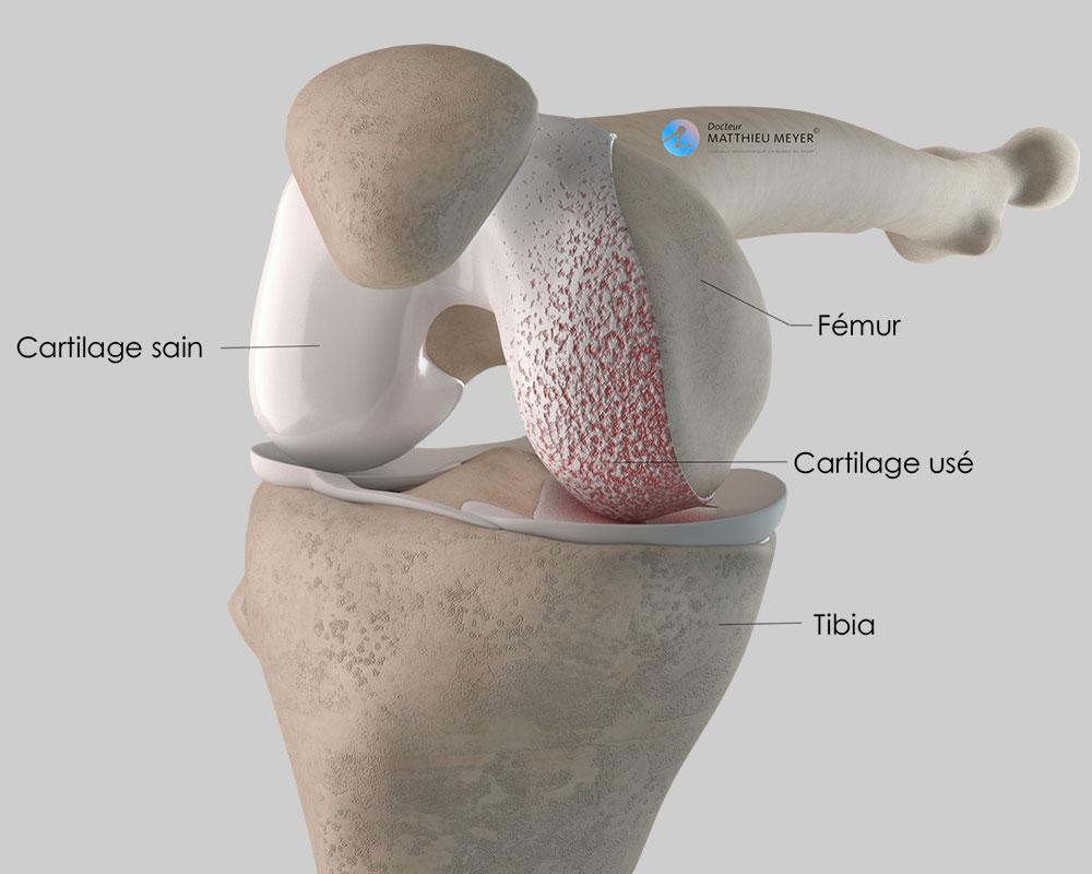 Arthrose limitée au compartiment fémoro-tibial interne