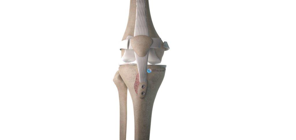 Recentrage rotulien par ostéotomie de la tubérosité tibiale antérieure