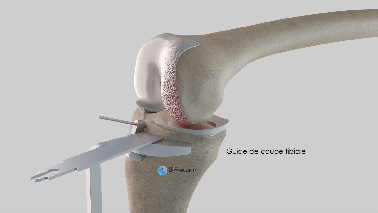 Préparation tibiale