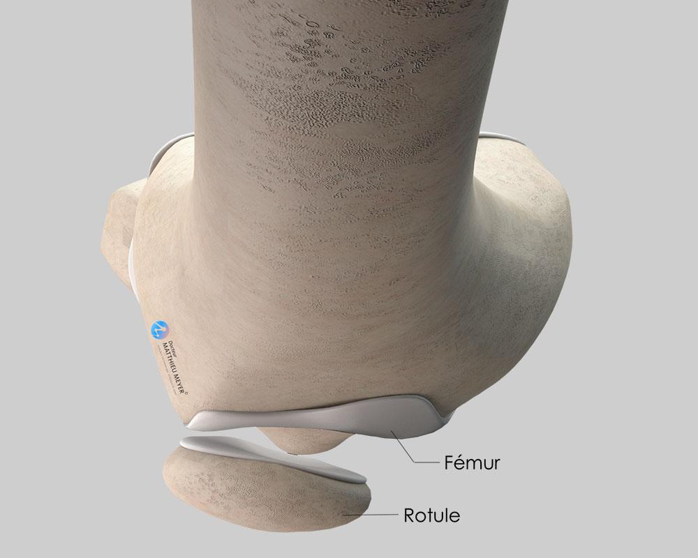 Rotule légèrement excentrée et basculée