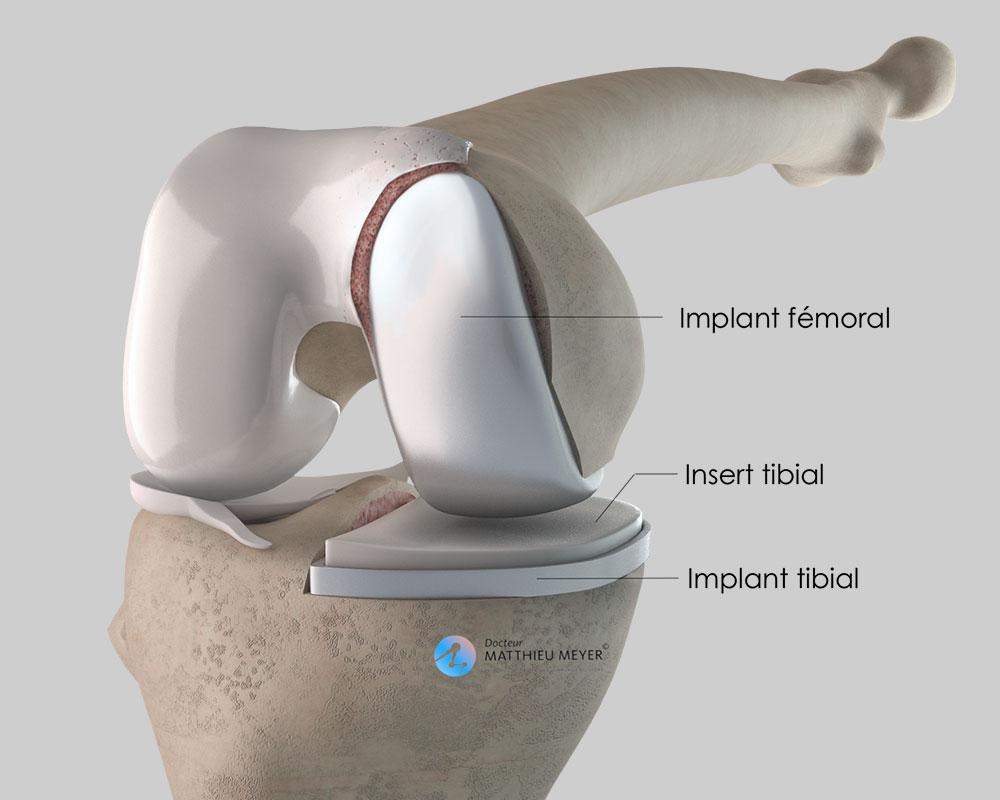 Prothèse unicompartimentale interne