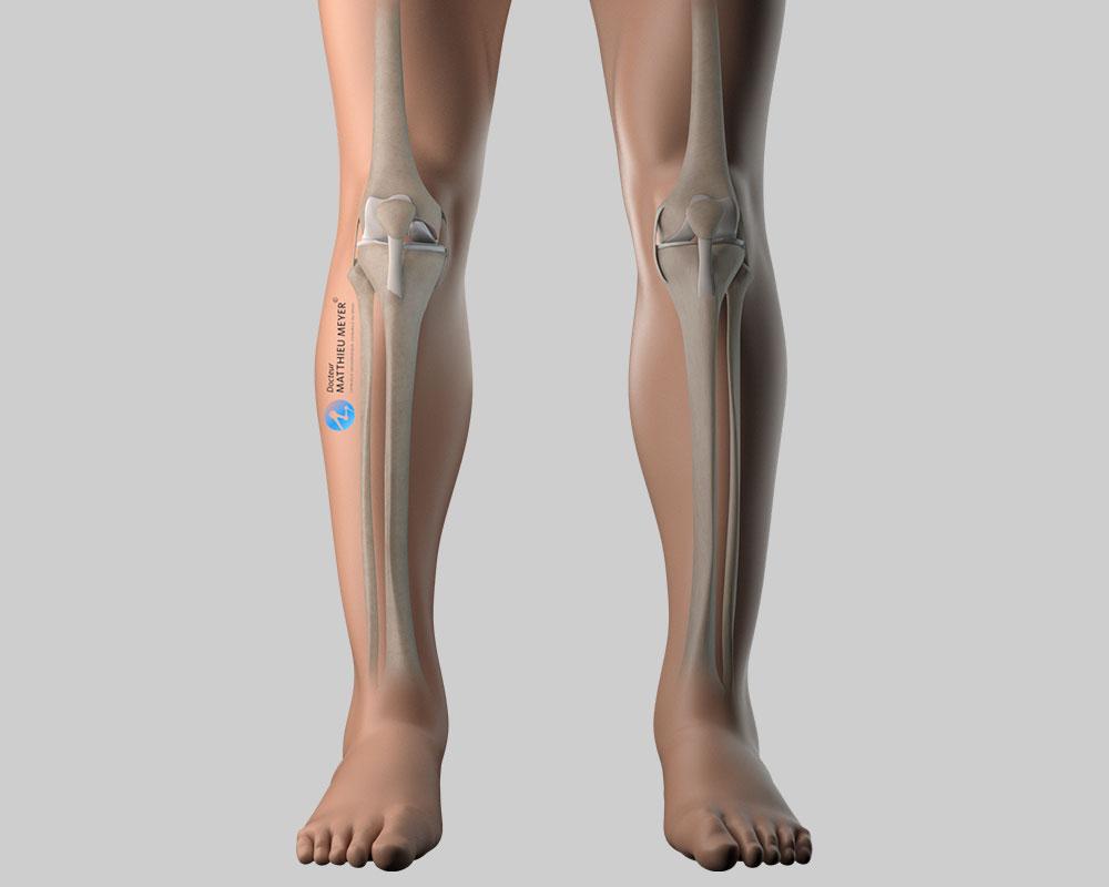 Genou avec prothèse unicompartimentale interne