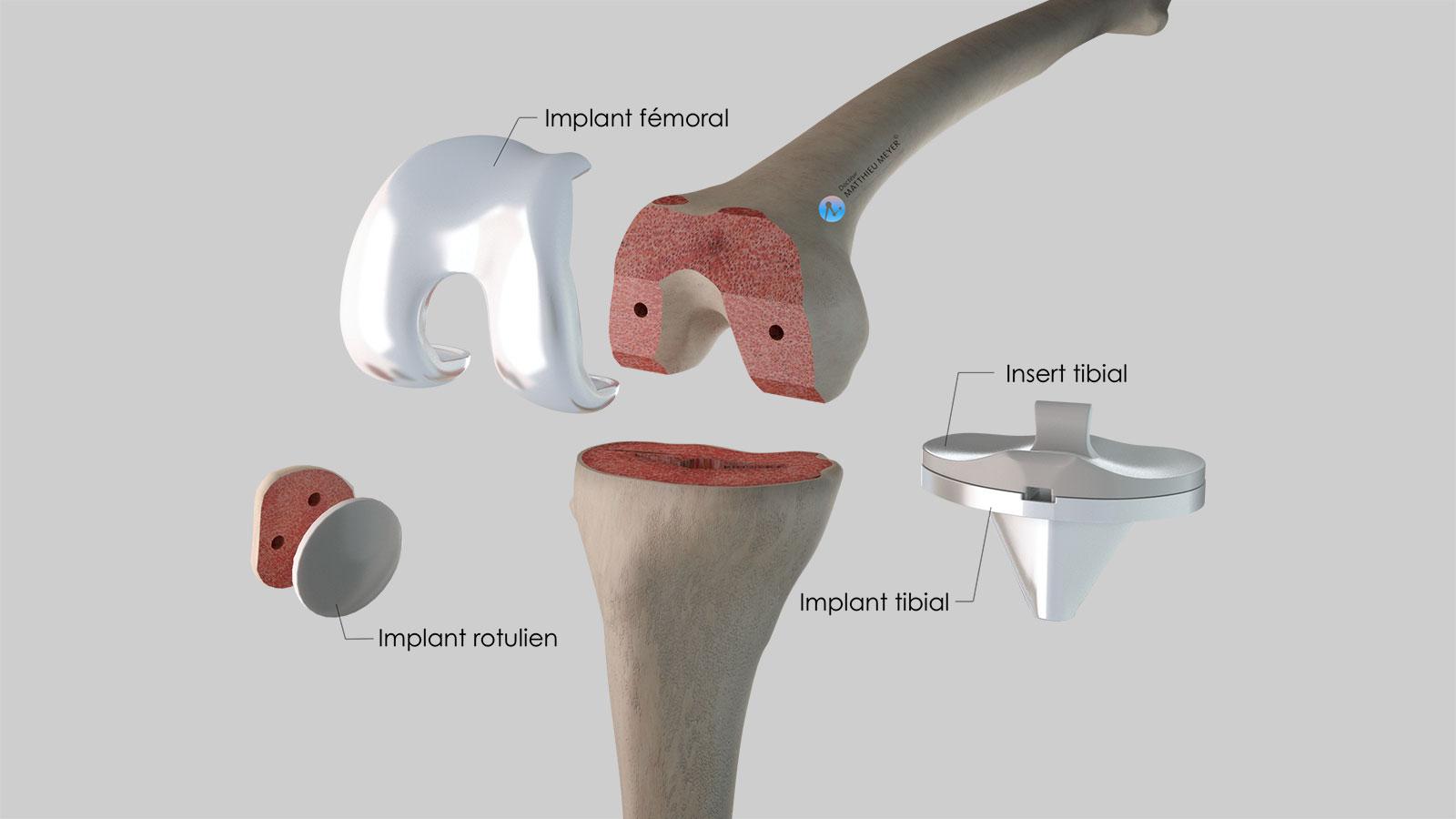 Ensemble des éléments de la prothèse totale de genou