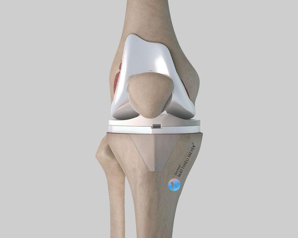 Prothèse totale de genou