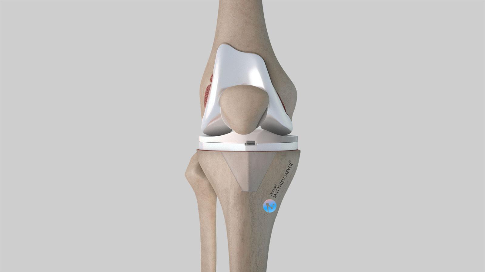 Prothèse totale de genou : vue de face