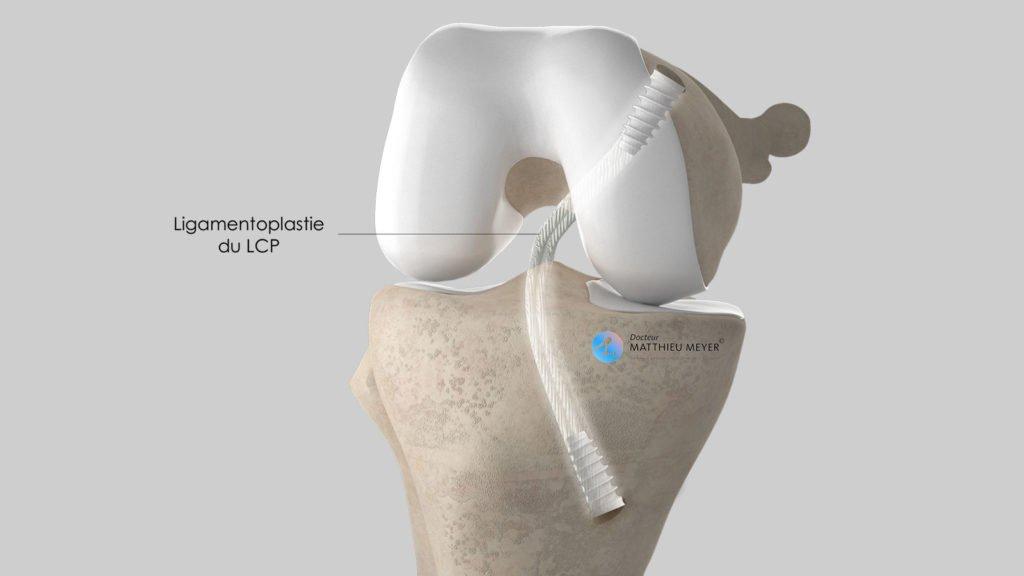 Ligamentoplastie du LCP : aspect final avec maintien du greffon par des vis d'interférence