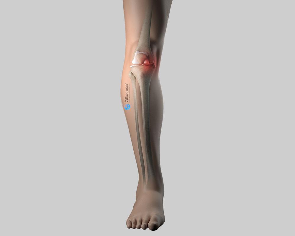 Axe du genou avant correction