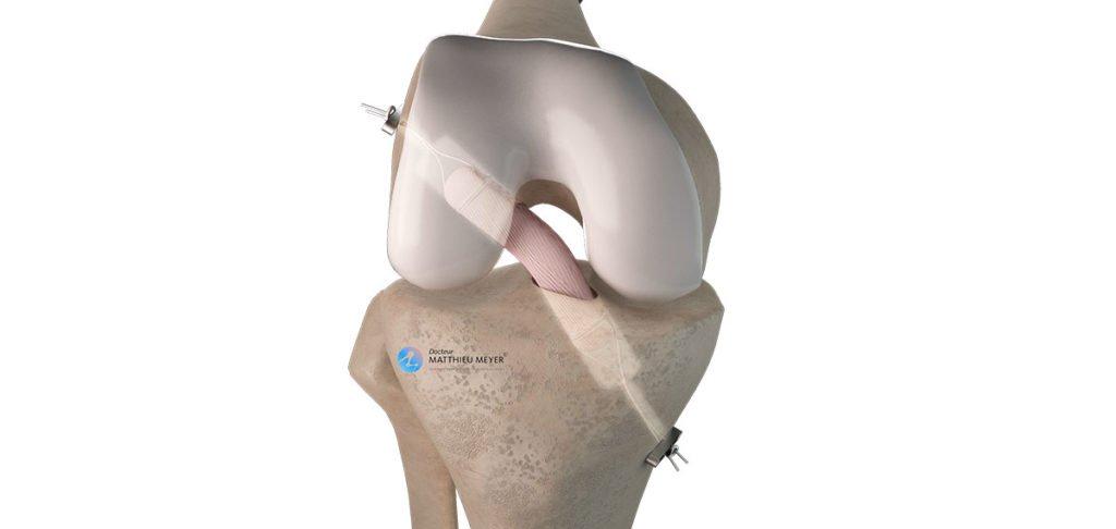 Ligamentoplastie du LCA par greffe courte au demi-tendineux (DT4)