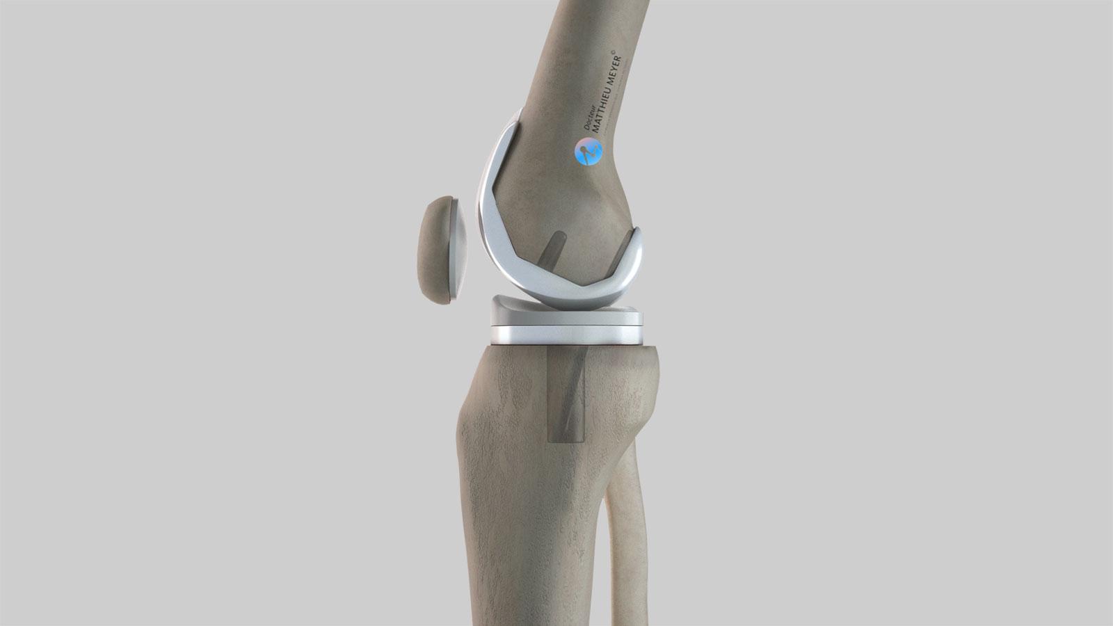 Prothèse totale de genou : vue de profil