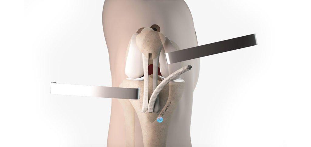 Ligamentoplastie du ligament croisé antérieur - Kenneth-Jones