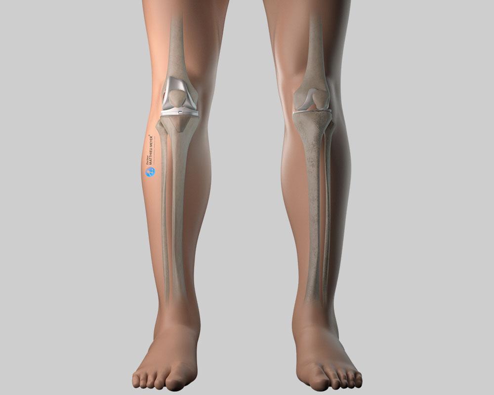 Genou avec prothèse totale