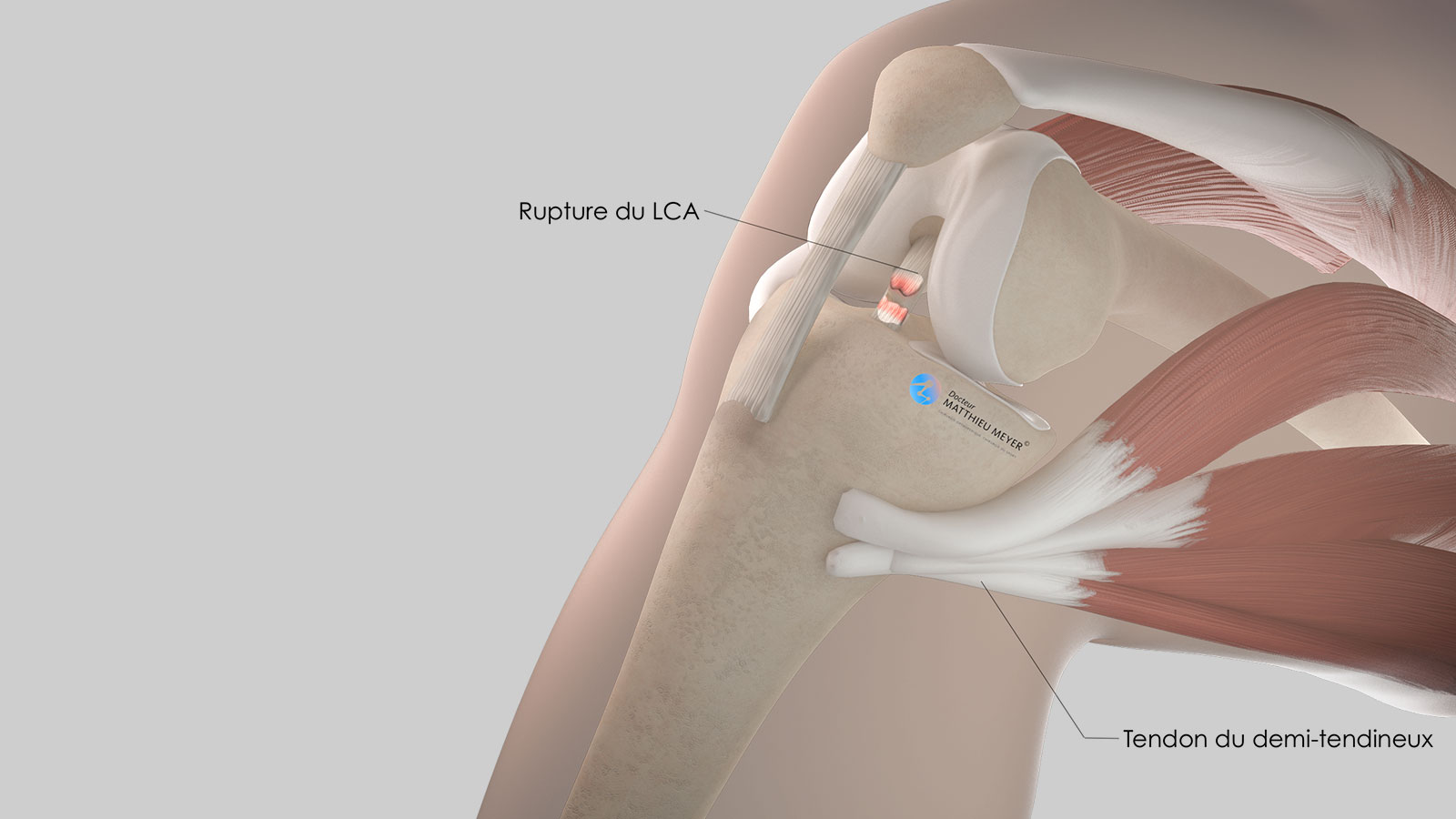 Repérage du tendon du demi-tendineux