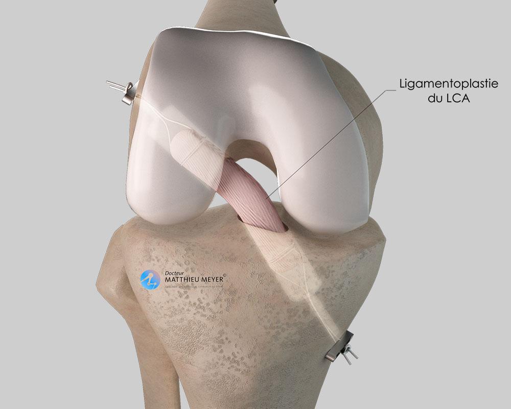 Aspect final de la ligamentoplastie DT4