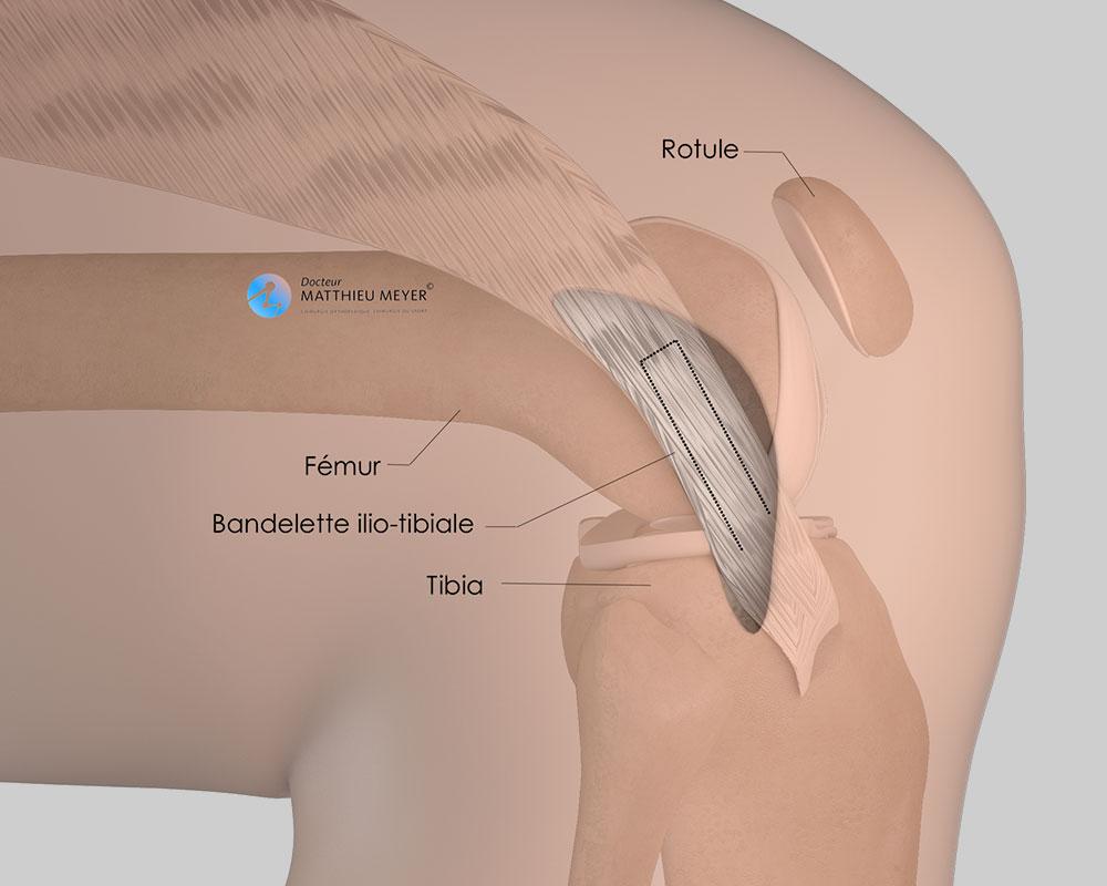 Reconstruction du ligament antéro-latéral : prélèvement de la bandelette ilio-tibiale