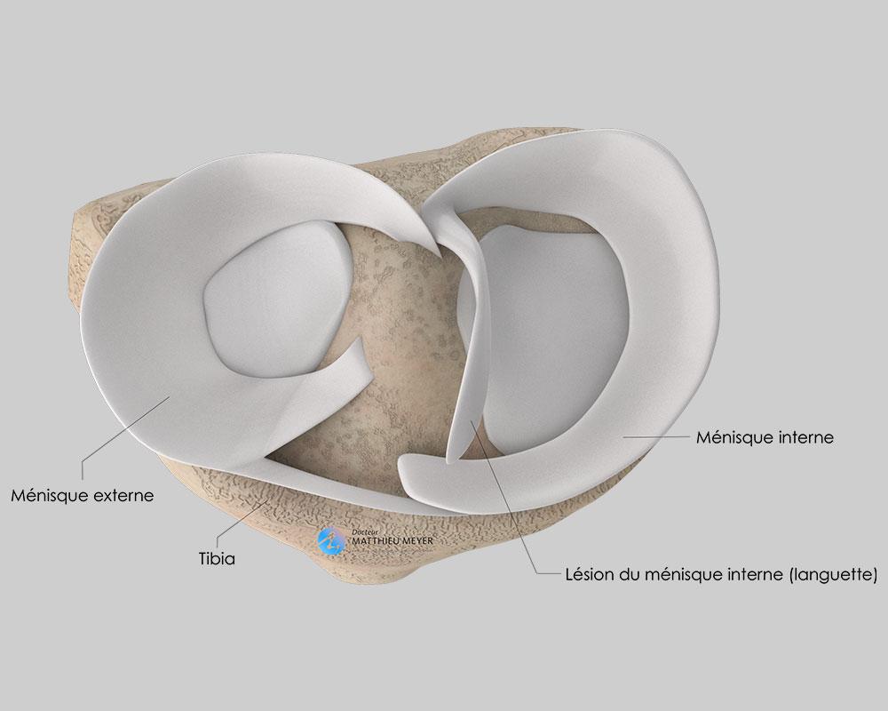 Lésion instable du ménisque interne avec languette mobile
