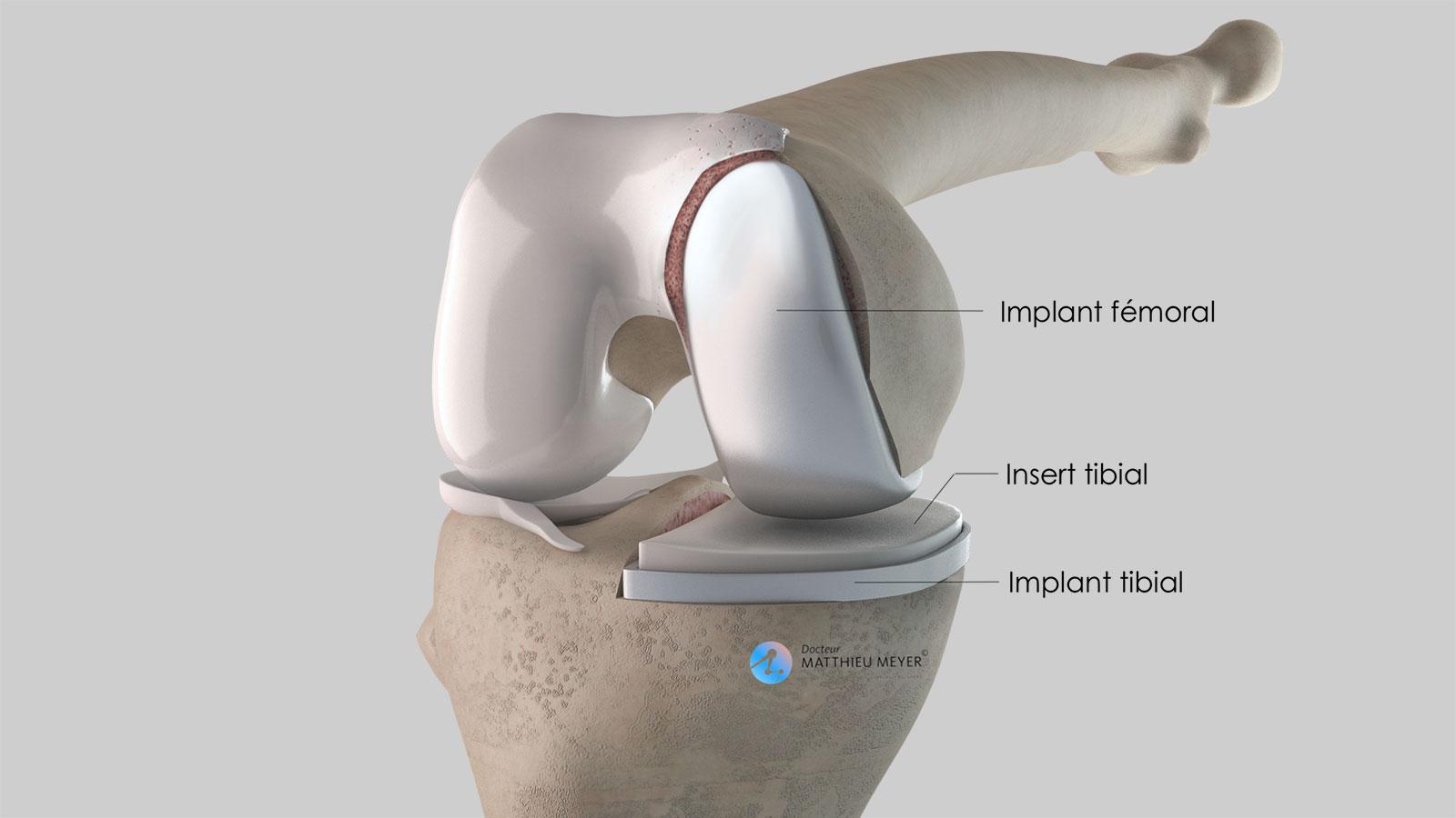 Prothèse unicompartimentale de genou