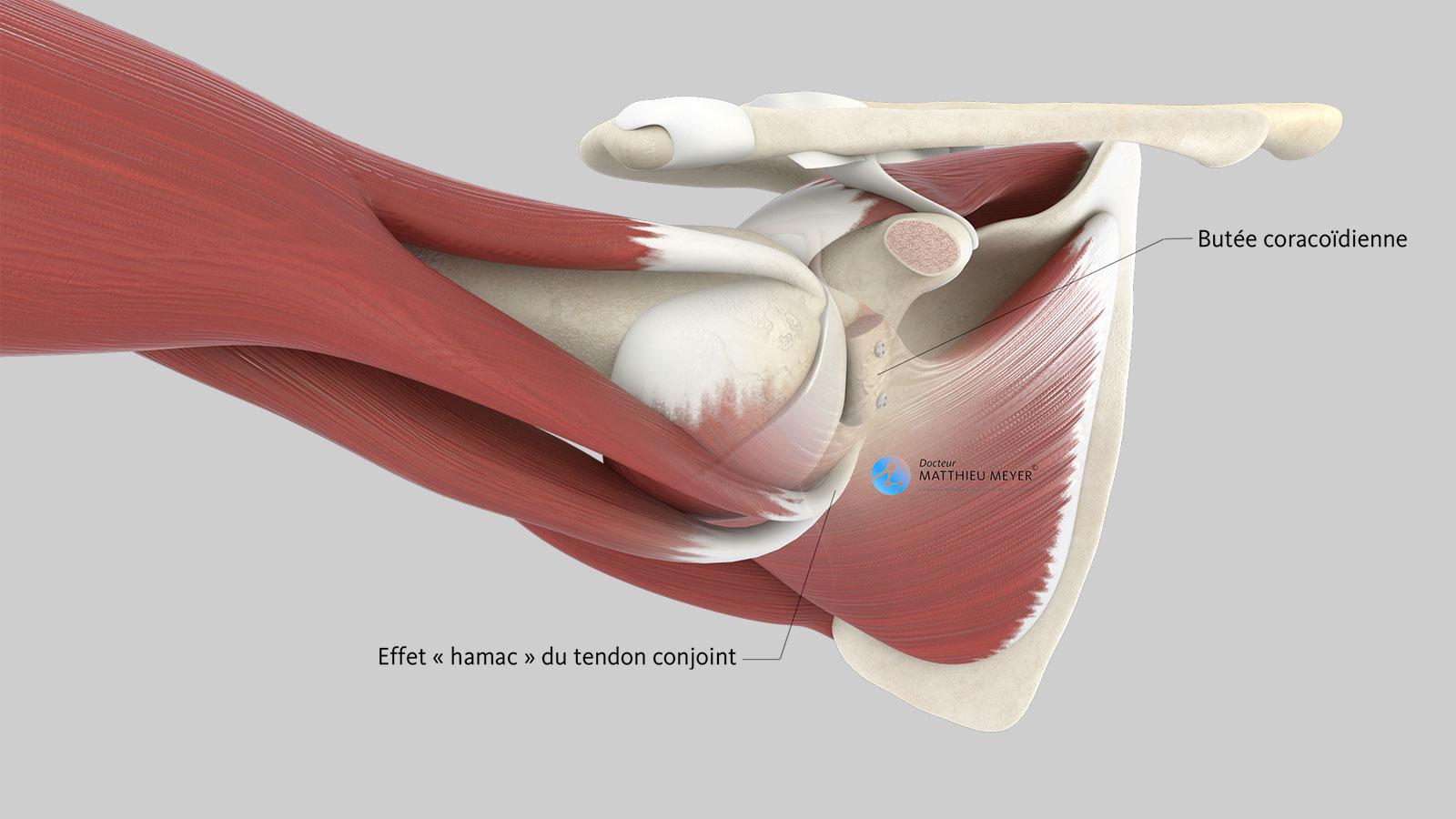 Stabilisation par effet hamac lors de l'armer du bras