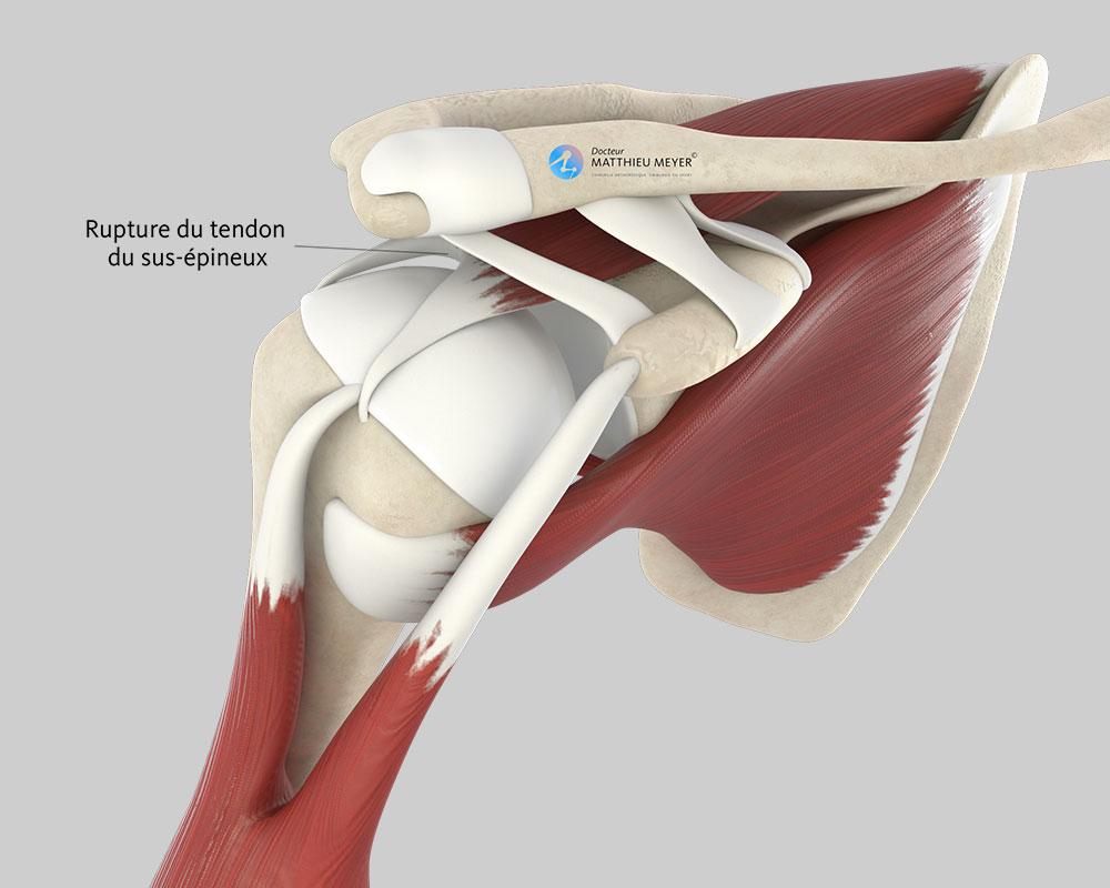 Rupture d'un tendon de la coiffe des rotateurs