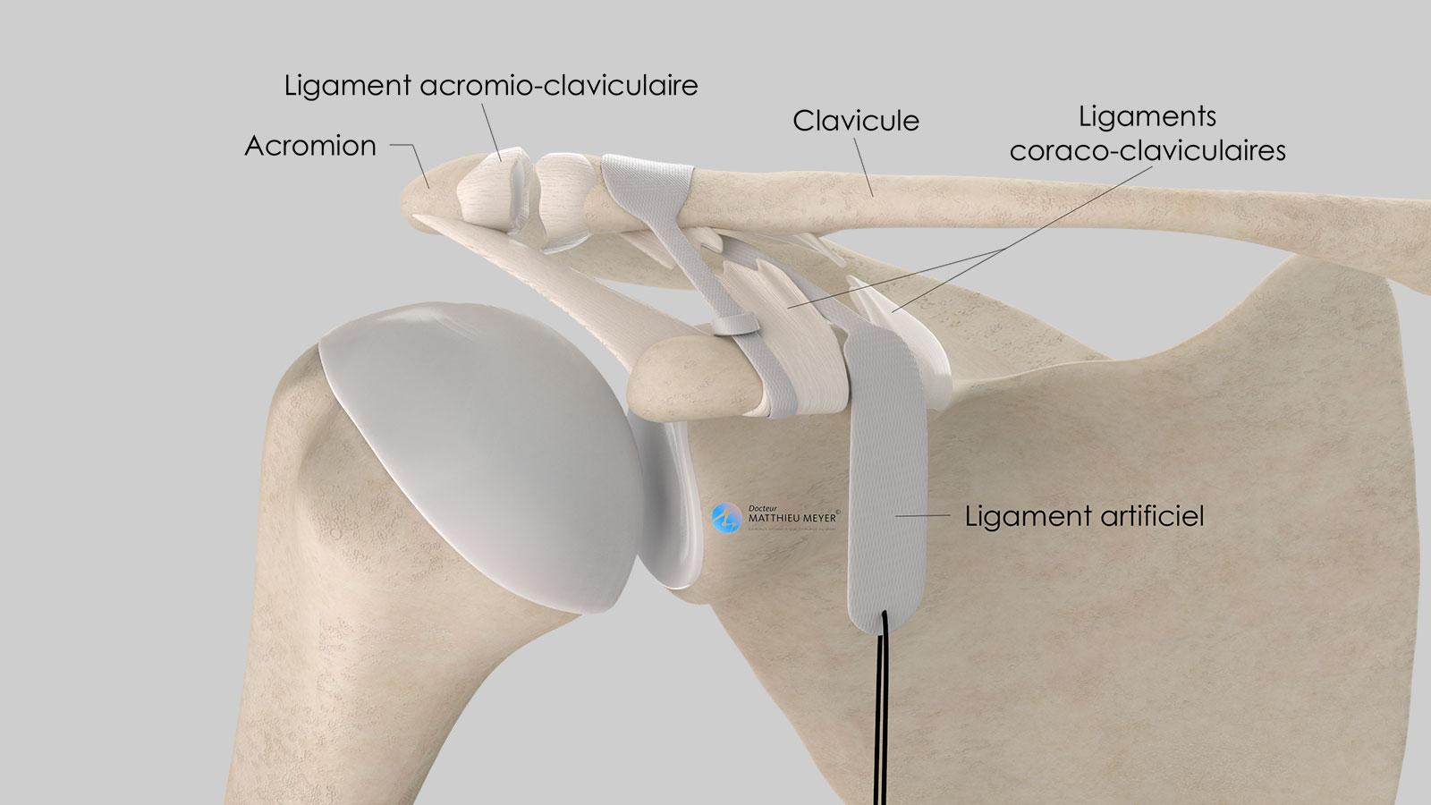 Mise en place du ligament artificiel : solidarisation de la clavicule à la coracoïde (vue antérieure)