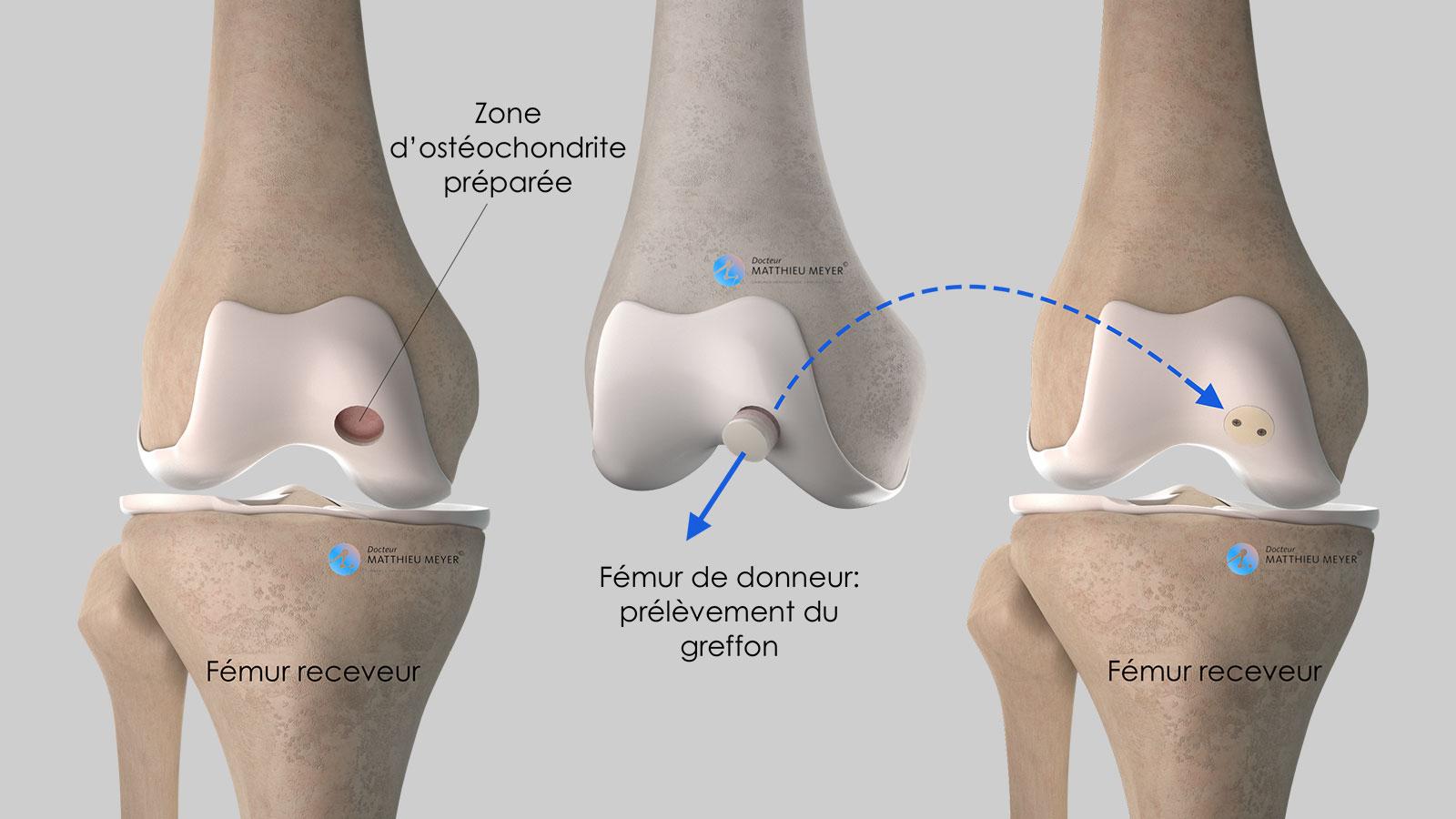 Allogreffe ostéochondrale