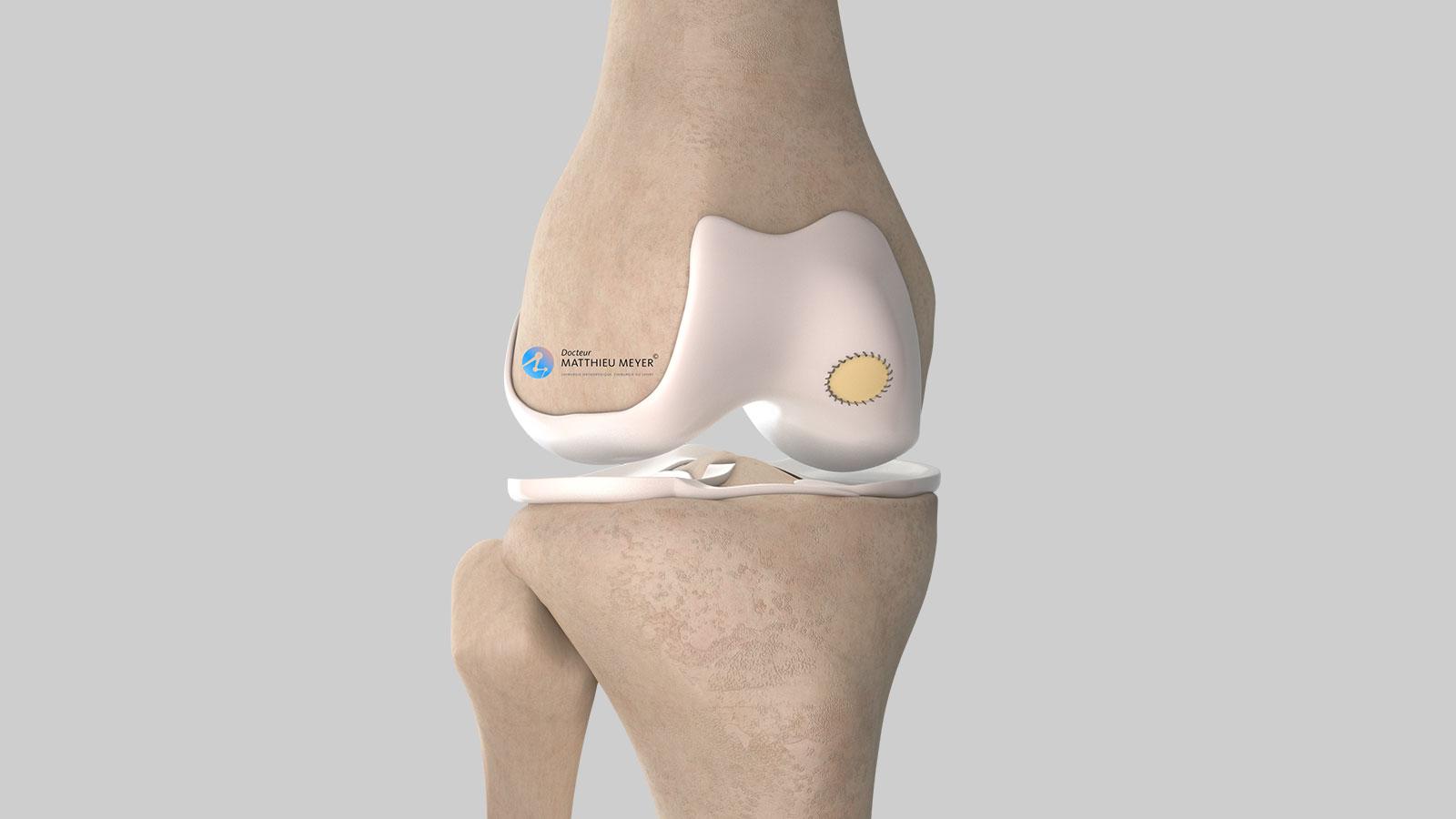 Membrane fixée par suture au cartilage