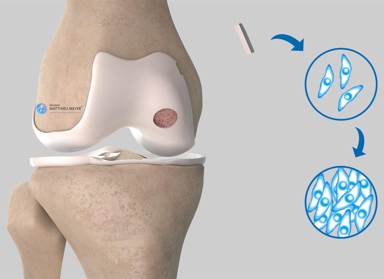 Prélèvement et mise en culture du cartilage