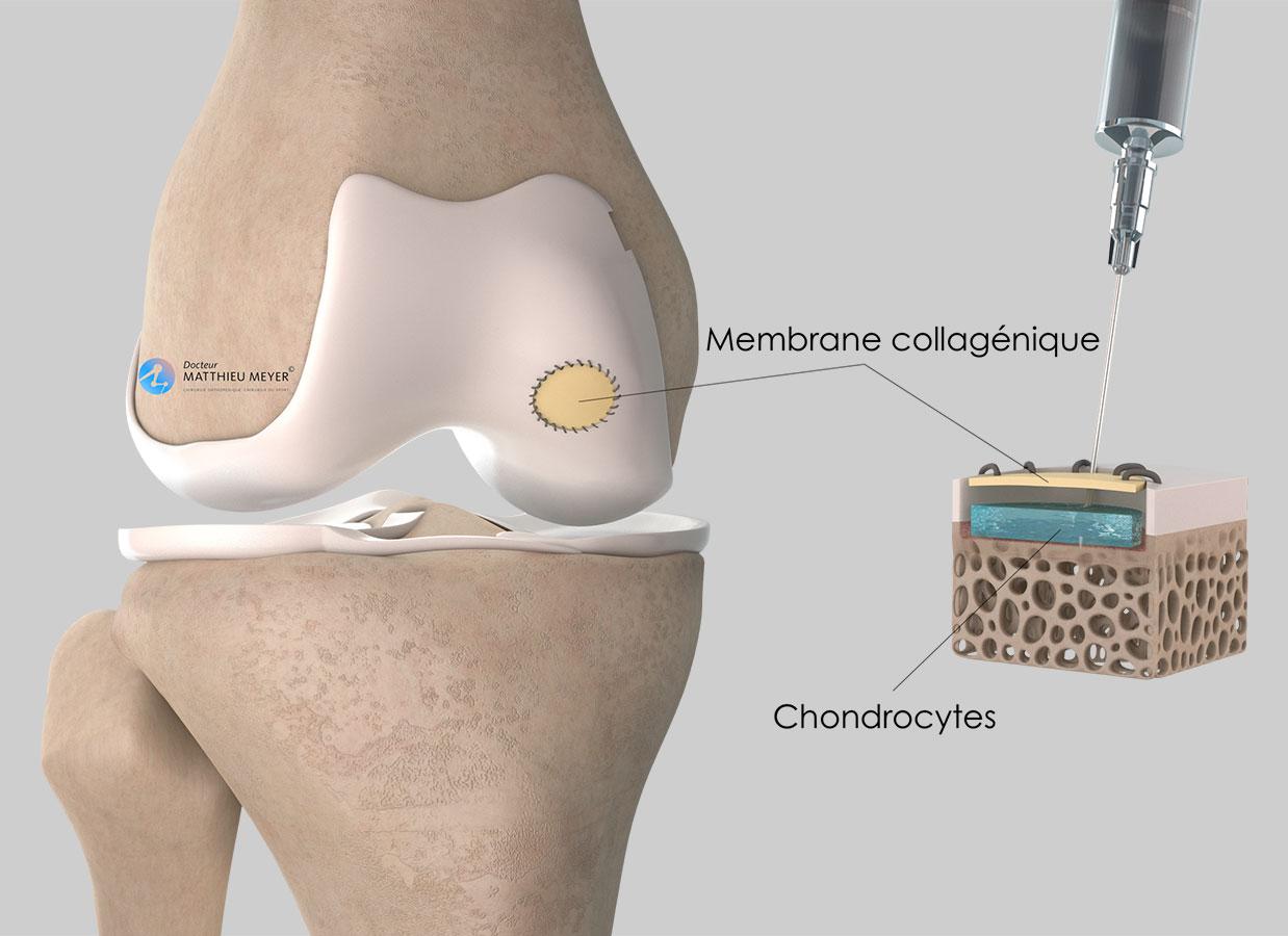 Injection des chondrocytes sous la membrane collagénique
