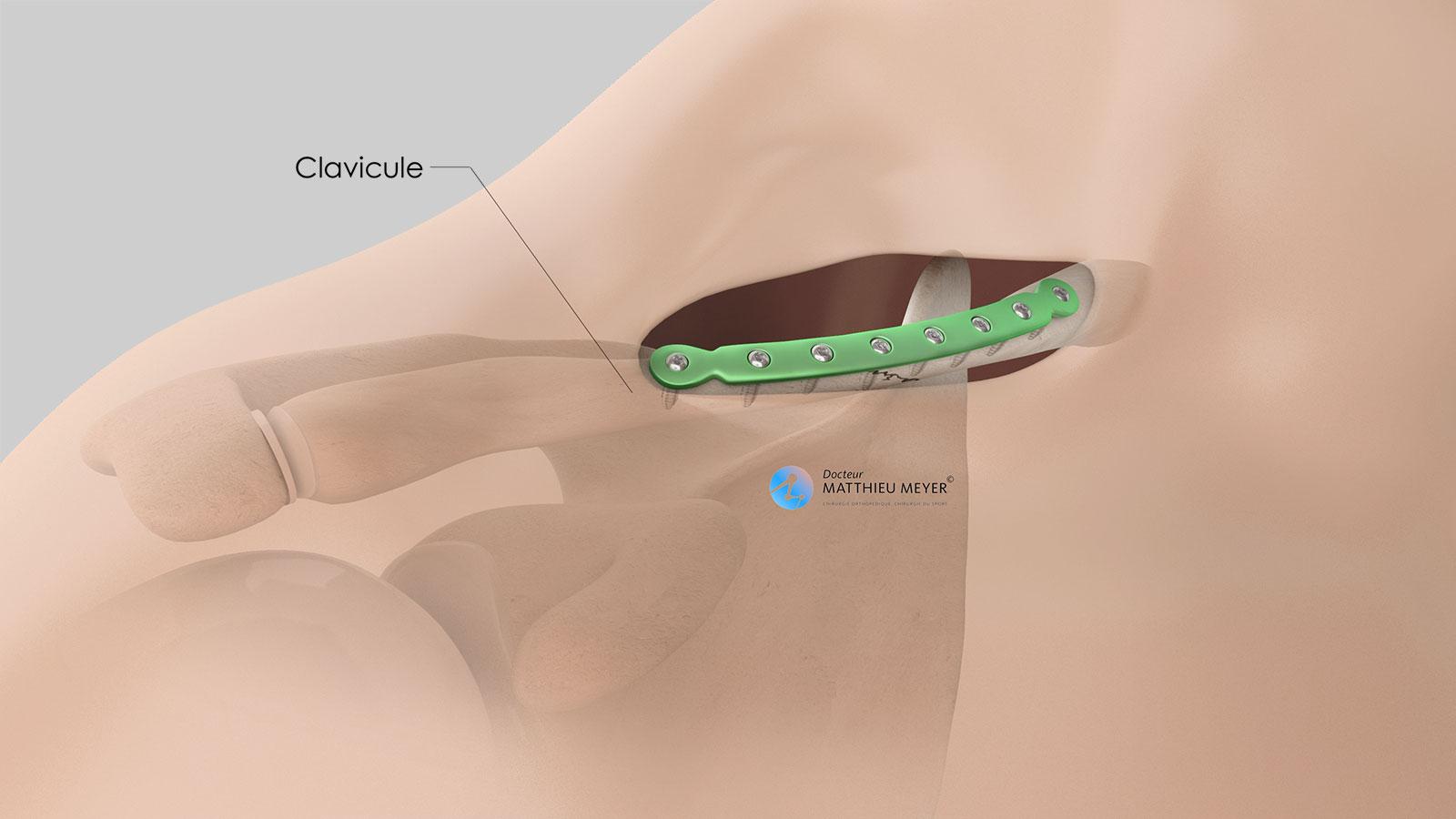 Ostéosynthèse de la clavicule par plaque vissée