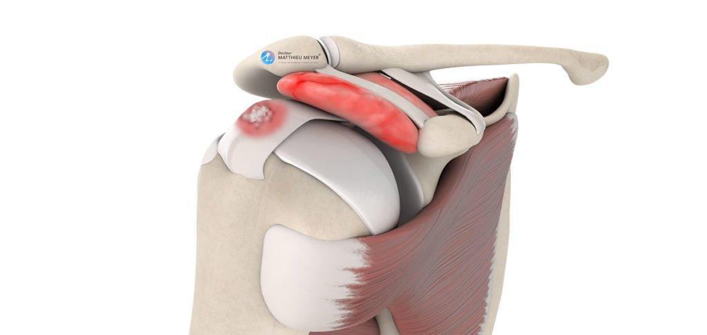 Evacuation de calcification de la coiffe des rotateurs par arthroscopie