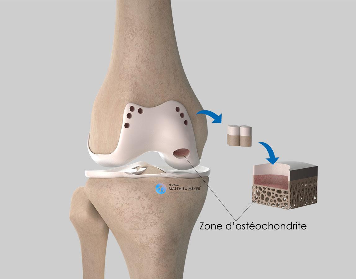 Prélèvement des plots ostéochondraux en bordure du cartilage fémoral