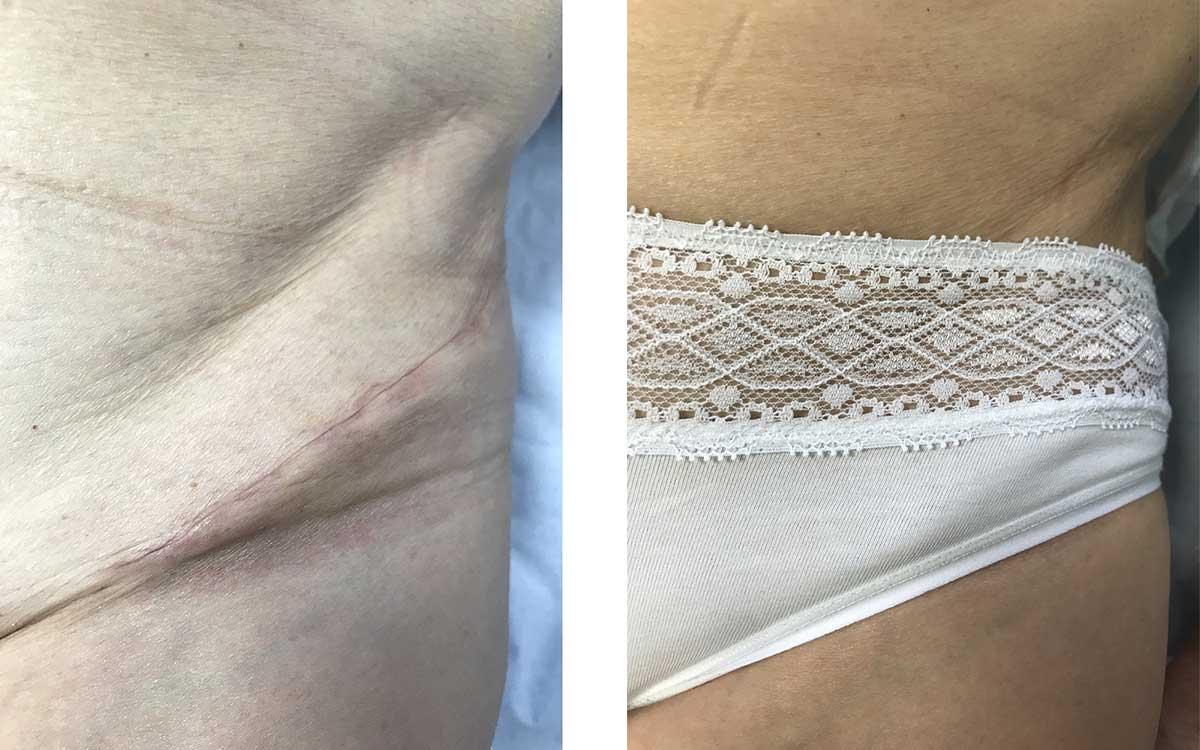 Cicatrice Bikini